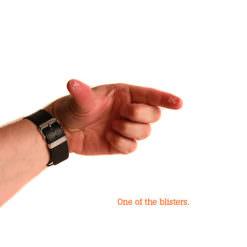Branded blisters on Fingers